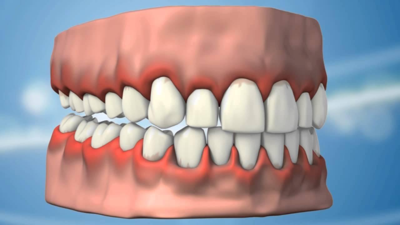 Diş eti kanseri nedir Belirtileri nelerdir